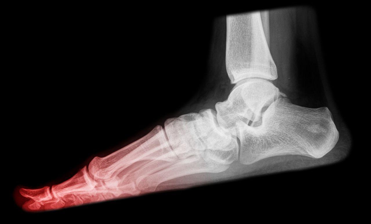 Turf toe, toe damage.