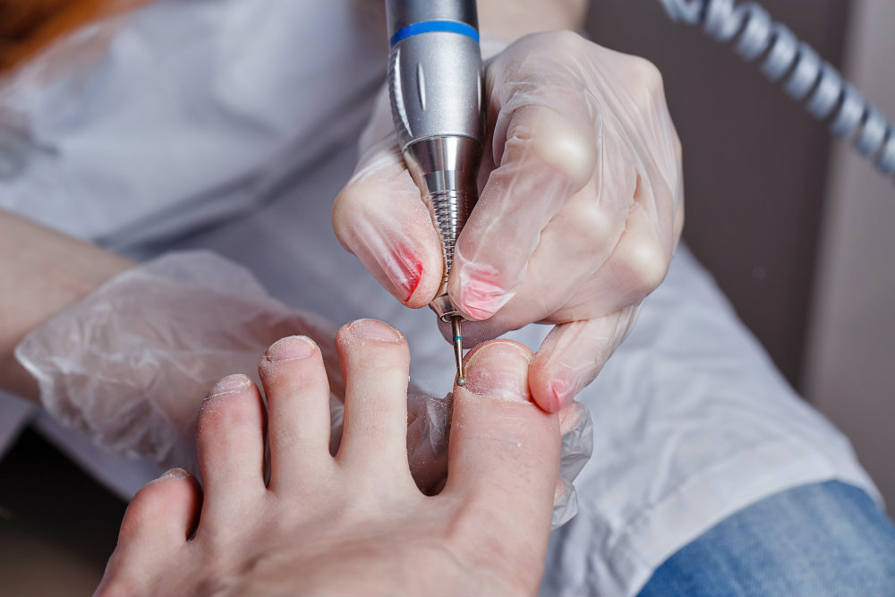 Toenail restoration for fungal nails