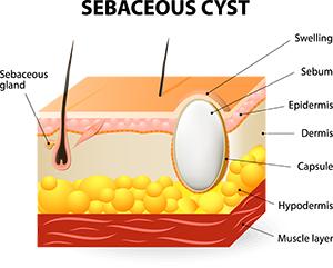 Sebaceous Cyst Diagram
