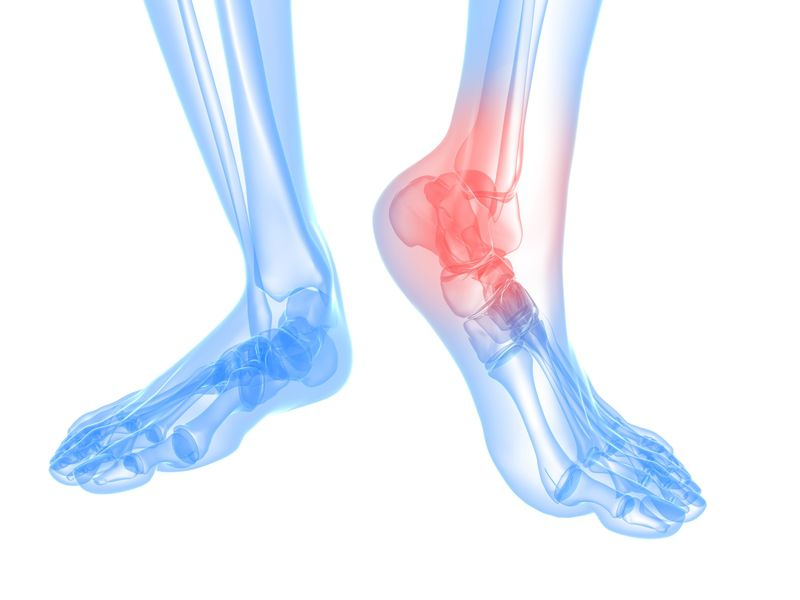 Sprains and Fractures of the Ankle