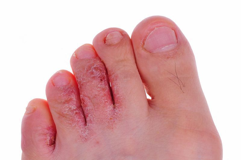 Treatments for Athlete's Foot