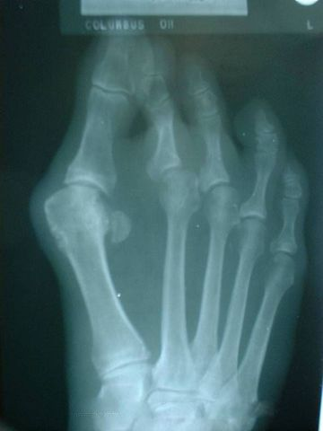 Xray of a Bunion