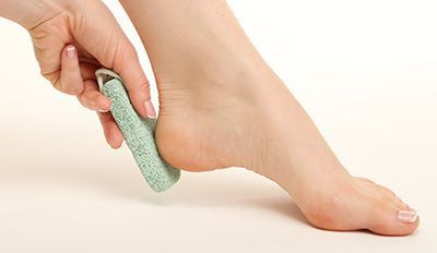 Smoothing and Treating Calluses and Corns