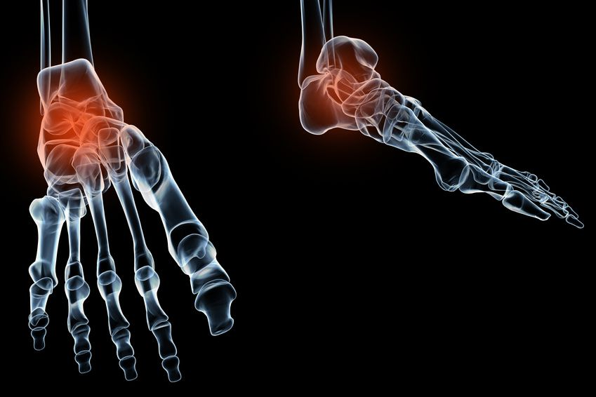 Dealing with Nerve Pain