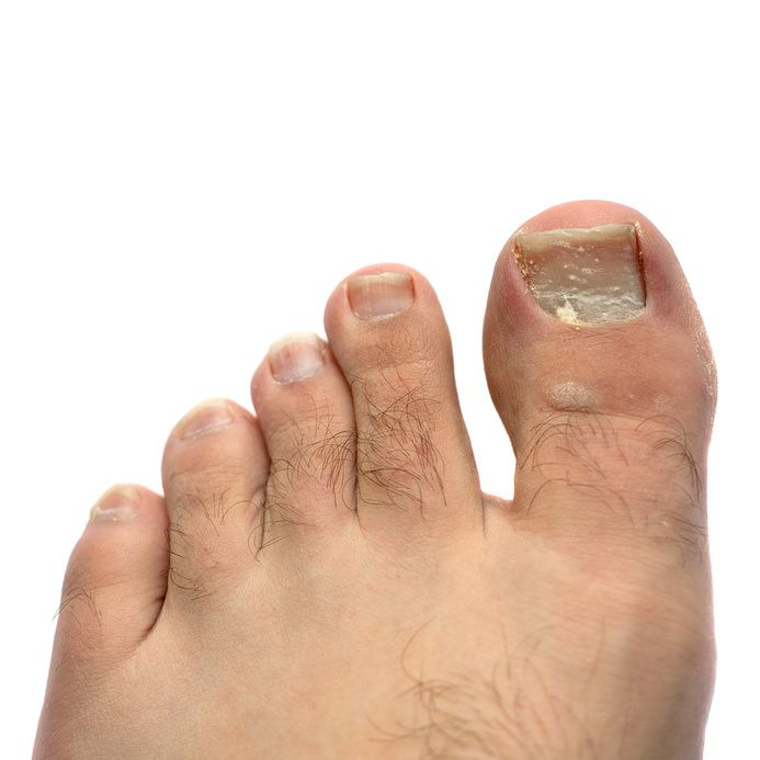 Unsightly Toenail Infection
