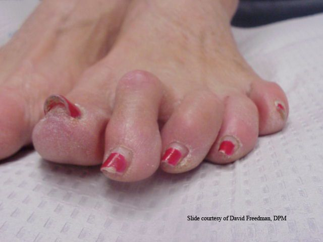 Treatment for Hammertoes