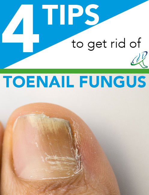 4 Tips to Get Rid of Toenail Fungus
