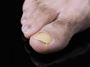Fungal toenails on elegant black surface