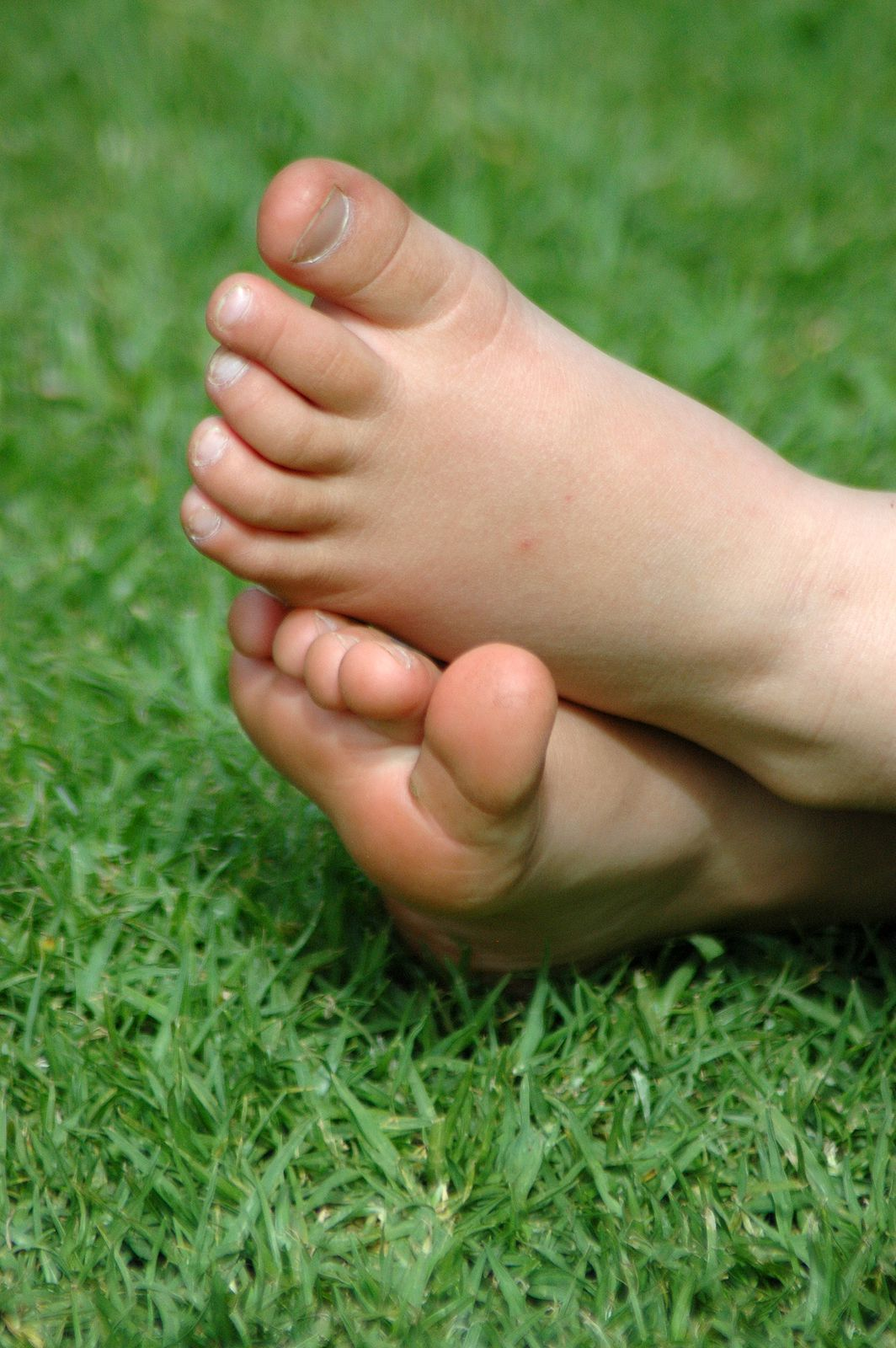 Treating Pediatric Bunions