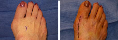 Bunion Before and After Surgery