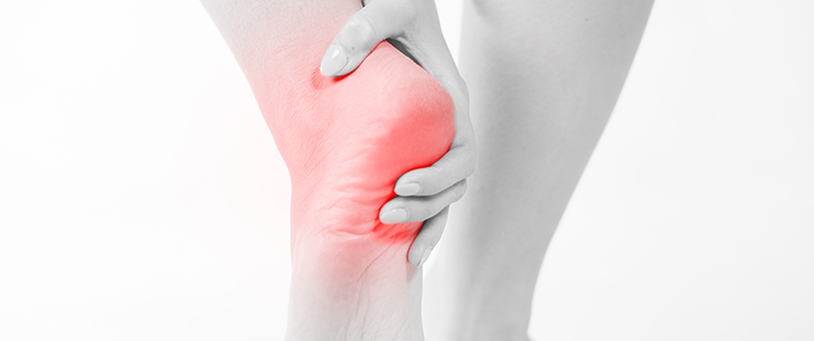 treatment options for heel spurs