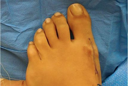 Bunion - After Surgery