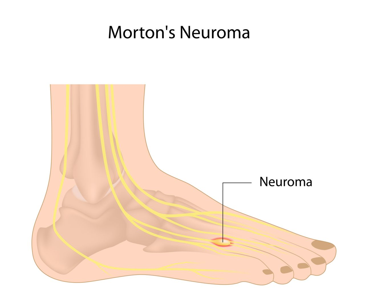 What is a Morton's Neuroma?