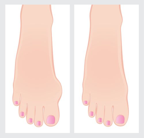 Treatment for Painful Bunions in Children