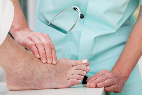 Doctor examining bunion on a foot