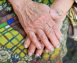 Elderly Resident With Dirty Hands and Fingernails