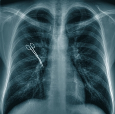 Chest X-Ray Showing a Retained Pair of Surgical Scissors