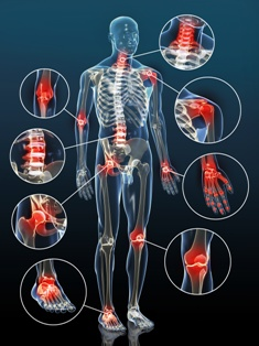 Osteoarthritis related personal injury car accident claims