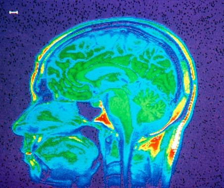 Austin brain injury lawyer
