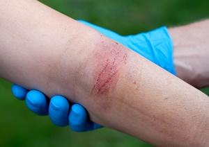Summer burn injury risks to avoid