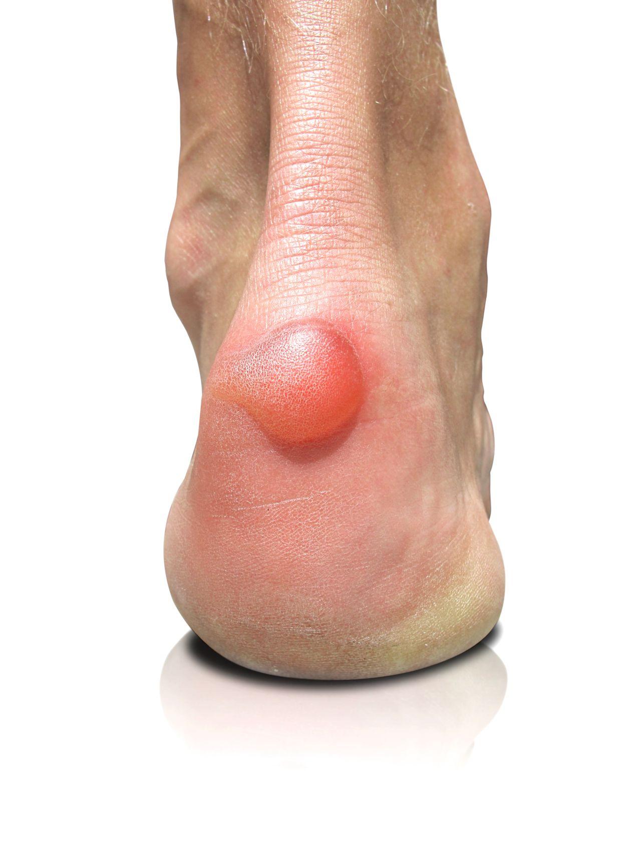 Haglund's Deformity of the Foot | Prairie Path Foot ...