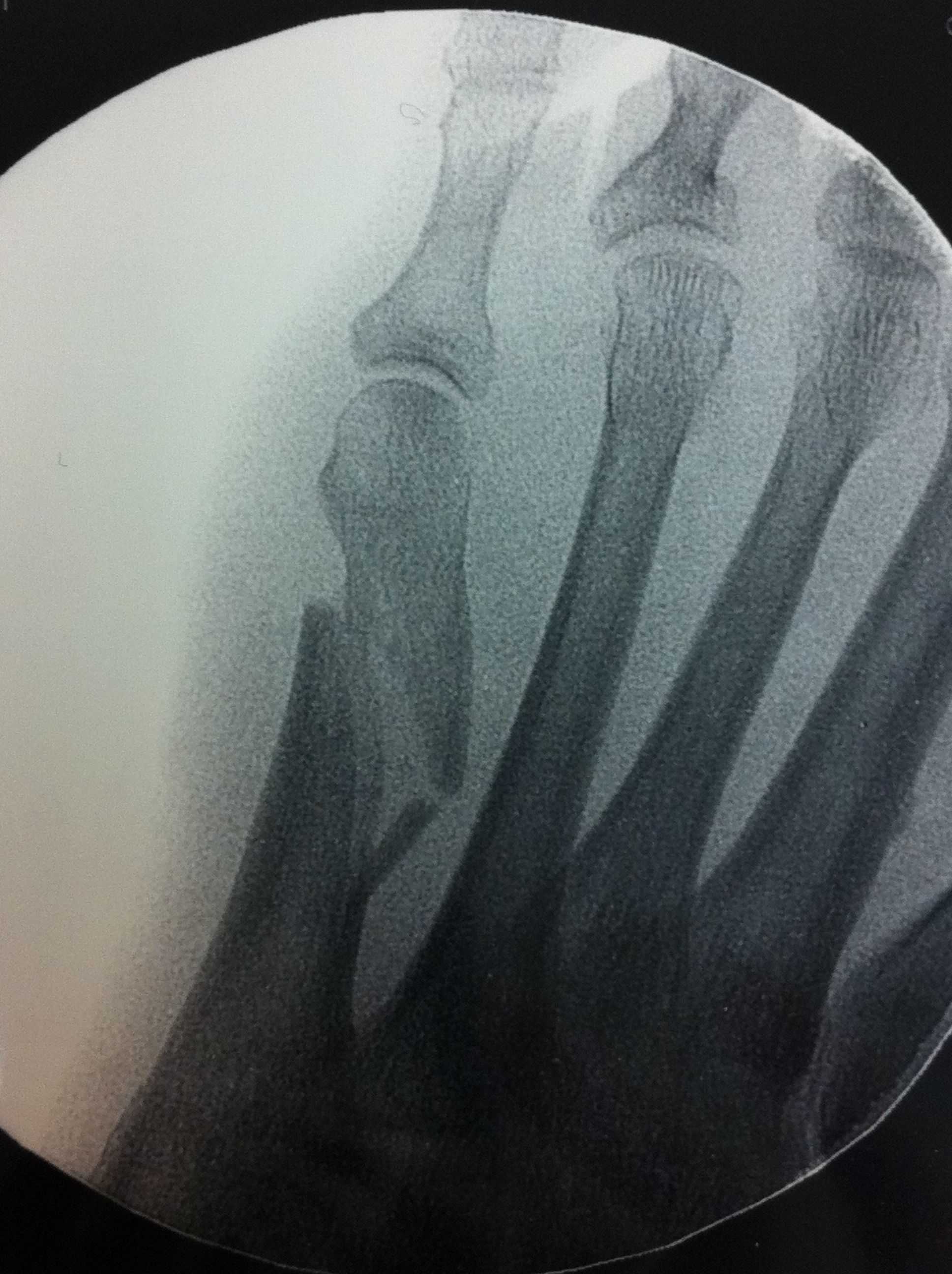 5th met fracture preop
