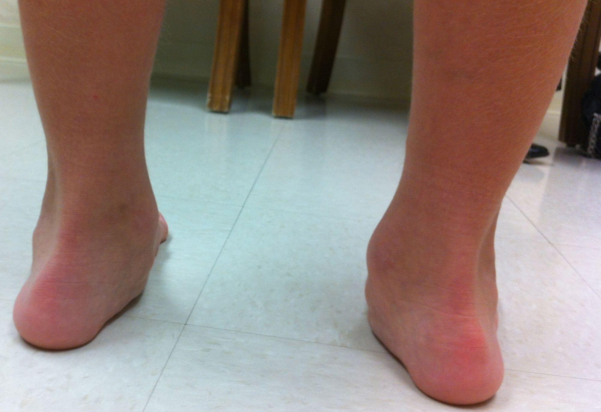 pediatric flat foot