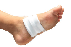 Diabetes and Nerve Damage in Feet