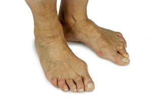 Bunions cause a bulge at the base of the big toe