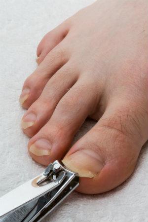 Healthy nail habits
