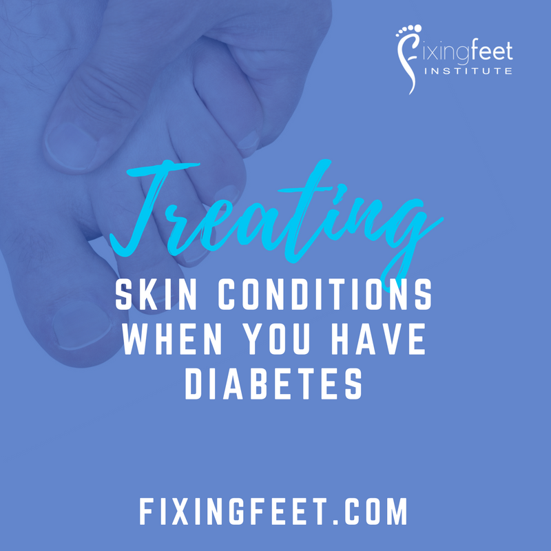 Treating Skin Conditions When You Have Diabetes