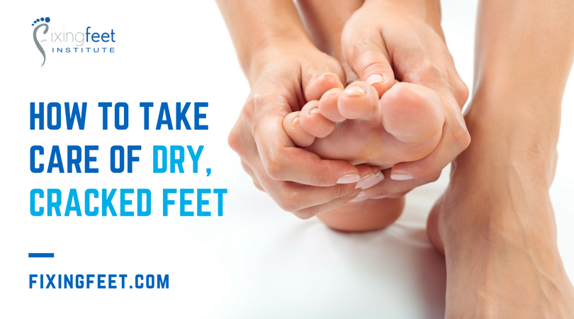 Take Care of Dry, Cracked Feet