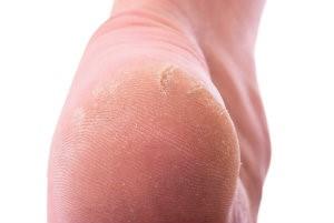 heel callus