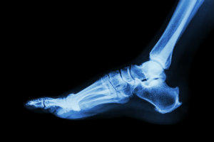 Charcot foot starts with broken foot bones and can create severe deformity.