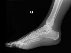 Charcot foot develops when foot bones break and nerve damage is present