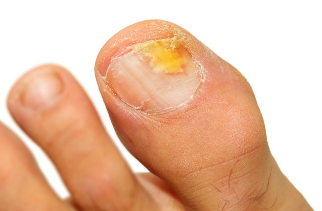 fungal-toenails