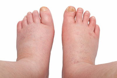 Are your swollen feet a sign of Edema