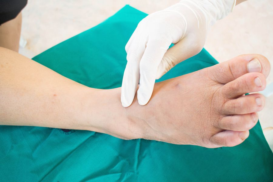 Checking a diabetic foot