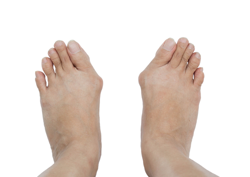 Treatment options for your bunion