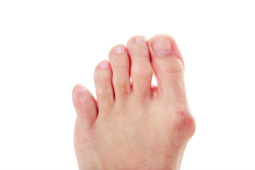 Consider bunion surgery for your pain