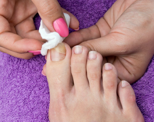 Treat fungal toenails with laser therapy!