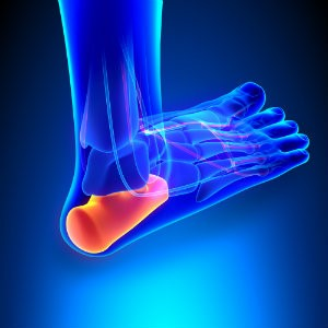 Heel pain and obesity