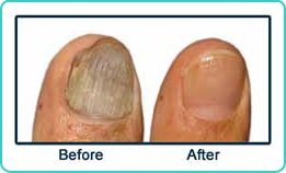 Before and After Fungal Nail