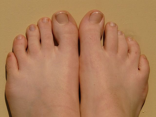 Feet with Diabetes