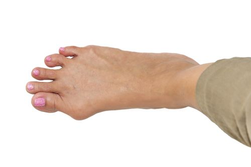 Bunion Against White Background