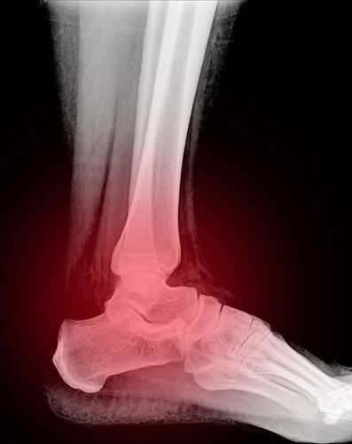 Stay off your broken ankle and recover with the help of Colorado Podiatry Associates.