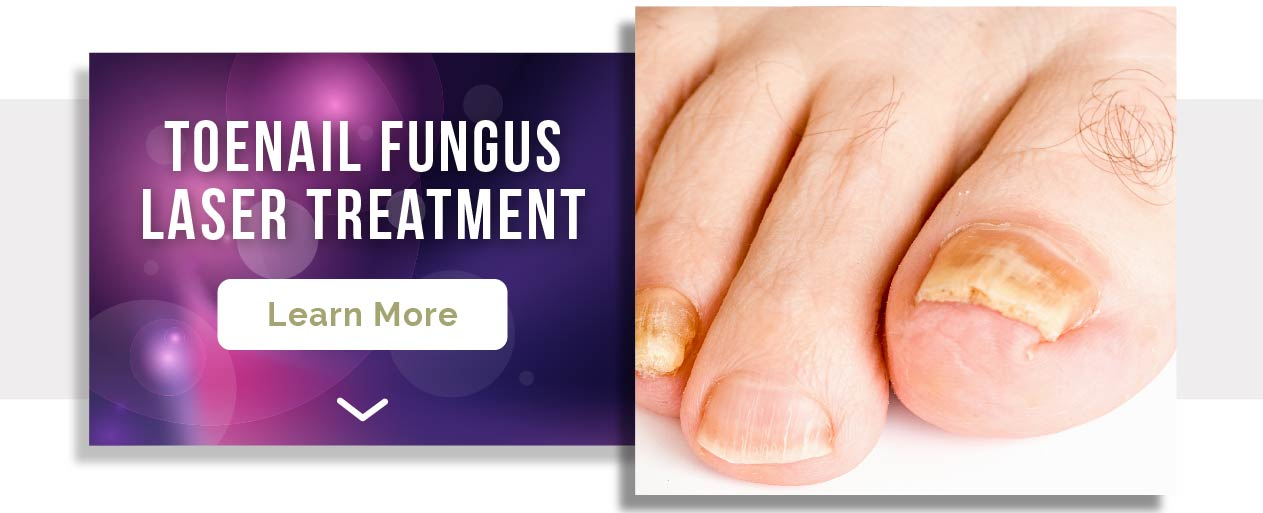 Laser treatment for fungal toenails
