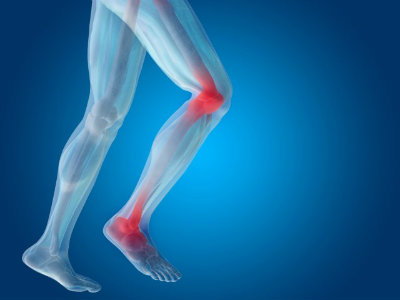 Chronic lower extremity pain