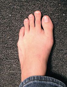 Morton's foot type