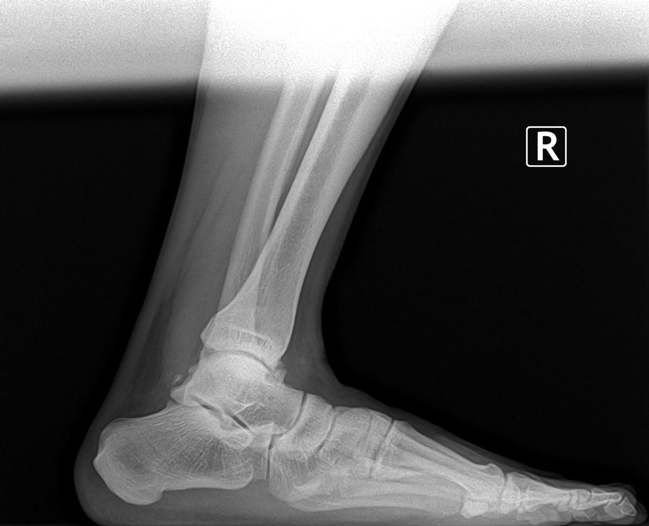 charger view of the ankle